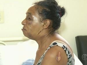 HUAna recebe em média dois idosos vítimas de queda por dia